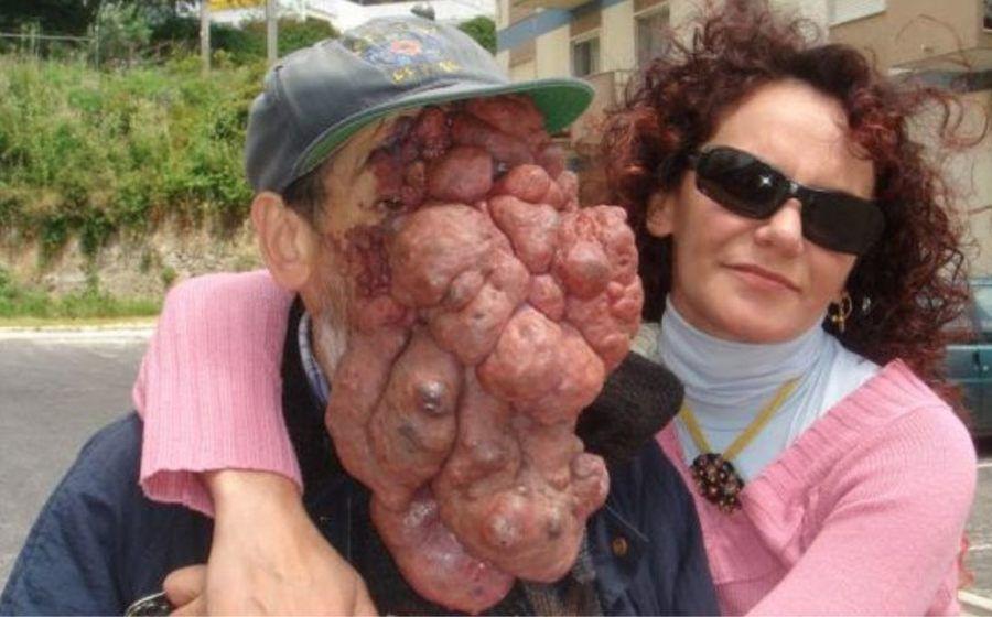 photo-malformation-humaine-medicale-haemangioma